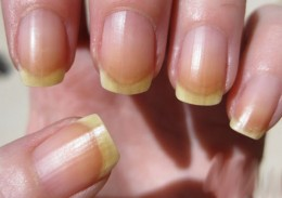 Yellow-nails